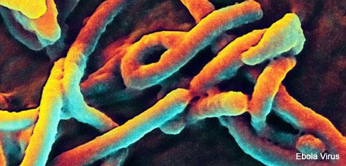 Ebola Virus Image - ALLOW IMAGES